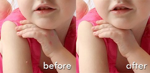 fix-skin-blemishes